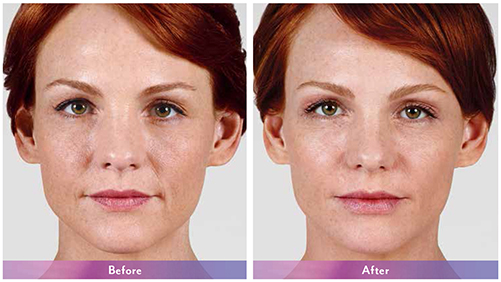Anne-Juvederm-Before-After-Dr-Dembny