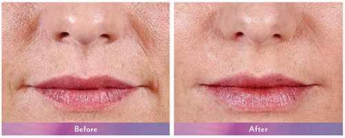 Anne-Juvederm-Before-After-Lips-Dr-Dembny