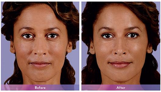 Chanita-Juvederm-Cheeks-Nasolabial-fold-Lips-B&A-Dr-Dembny