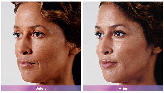 Chanita-Juvederm-Nasolabial-fold-Oblq-B&A-Dr-Dembny