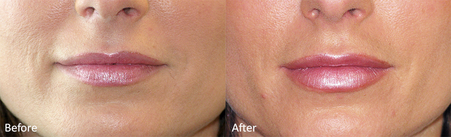Before-After-Lip-Enhancement-Juvederm-Dr-Dembny