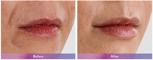 Before-and-after-juvederm-lip-enhancement-Dr-Dembny